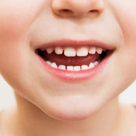Protect Your Child's Smile